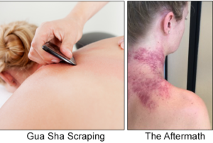 gua sha scraping